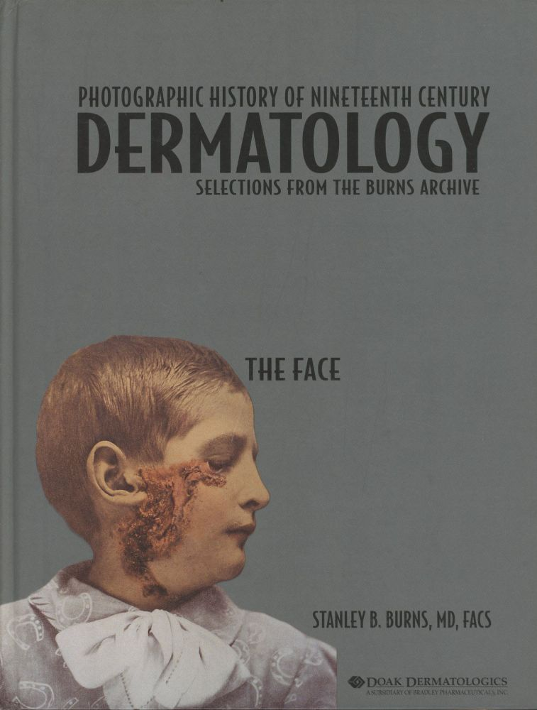 Photographic History of Nineteenth Century Dermatology: Selections from the Burns Archive: The Face. Stanley B. Burns.