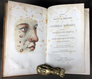 A Complete Practical Treatise on Venereal Diseases, and their Immediate and Remote Consequences,...