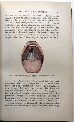 Elementary Practical Treatise on Diseases of the Pharynx and Larynx