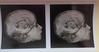Stereoscopic Studies of Anatomy Prepared under the Authority of the University of Edinburgh: SECTION I (1): CRANIO-CEREBRAL TOPOGRAPHY / CENTRAL NERVOUS SYSTEM