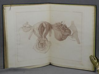 Graphic Illustrations of Abortion and the Diseases of Menstruation... The Whole Representing Forty-Five Specimens of Aborted Ova and Adventitious Productions of the Uterus, with Preliminary Observations, Explanations of the Figures, and Remarks, Anatomical and Physiological